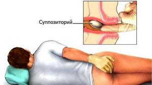 Pangásos prosztatagyulladás
